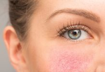 Okulární neboli oční forma rosacey